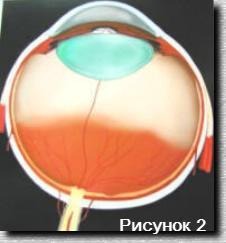 Восстановил зрение помощью упражнений