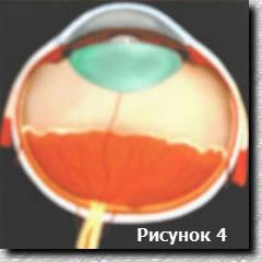 Вид 2 стадии ретинопатии недоношенных