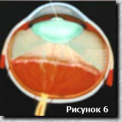 Схема лазерного луча при лечении ретинопатии