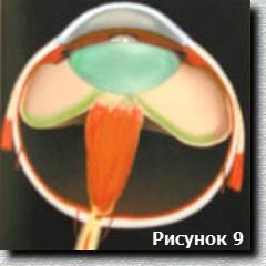 Схема 5 стадии ретинопатии