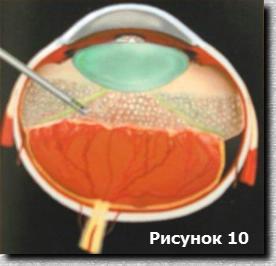 ретинопатия недоношенных стадии фото