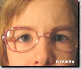 Лечение косоглазия у детей. В очках