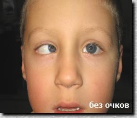 Причины и лечение косоглазия у детей 27