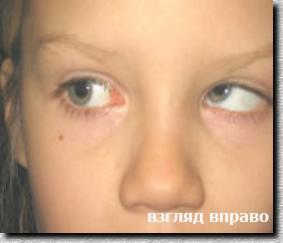 картинки косые глаза